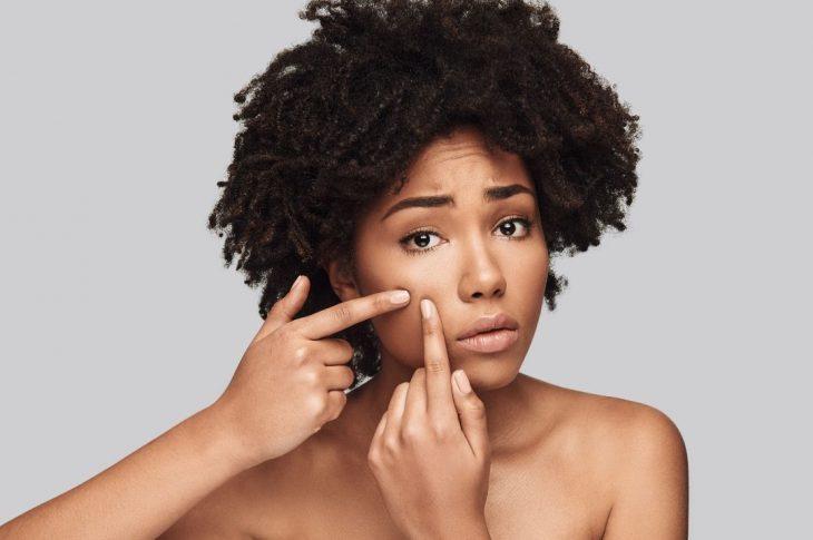 Rimedi casalinghi contro l'acne della pelle