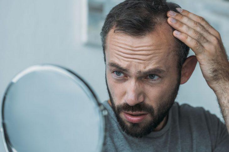 Sette possibili modi per evitare la caduta dei capelli